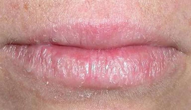 как лечить дерматит на губах