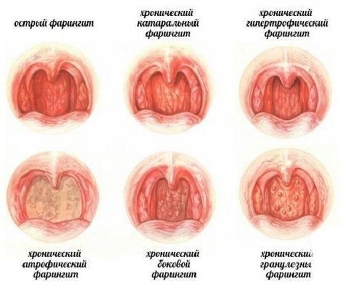 хронический субатрофический фарингит