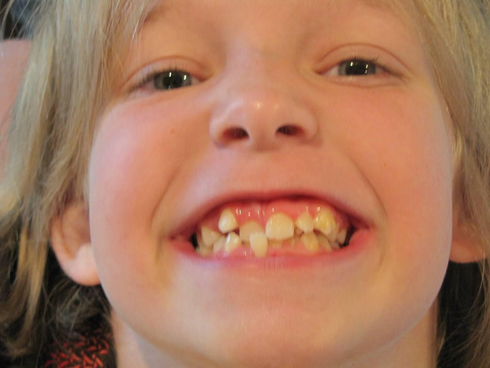 Кривые молочные зубы!!! - кривые молочные зубы что делать - запись пользователя наталья (minu) в дневнике - babyblog.ru