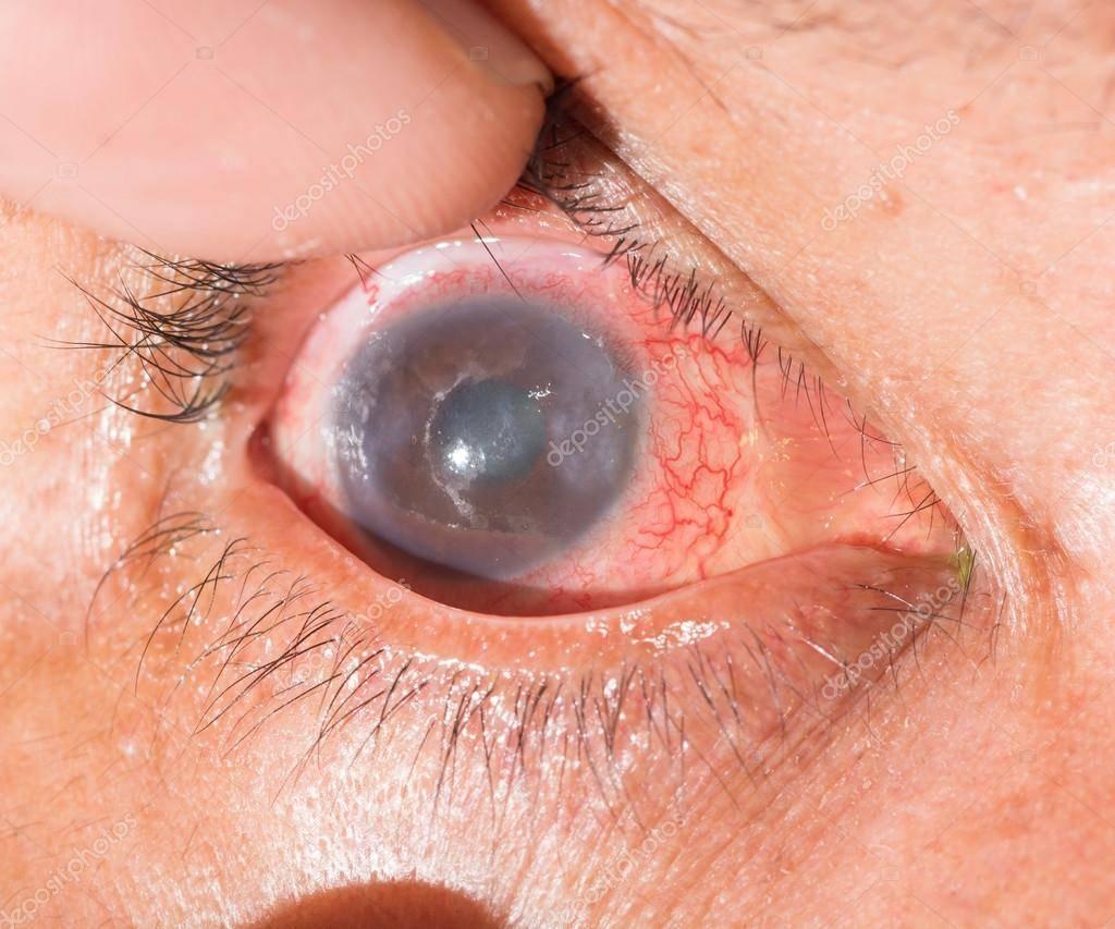 Увеит глаза симптомы и лечение у взрослых