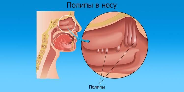 Как избавиться от полипов в носу без операции: возможно ли домашнее лечение?