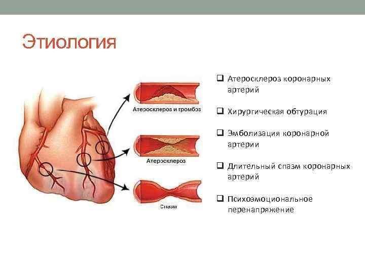 Атеросклероз коронарных артерий что это такое