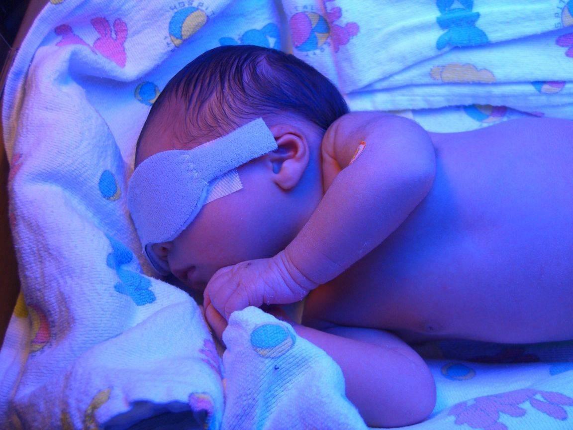 симптомы желтухи у ребенка