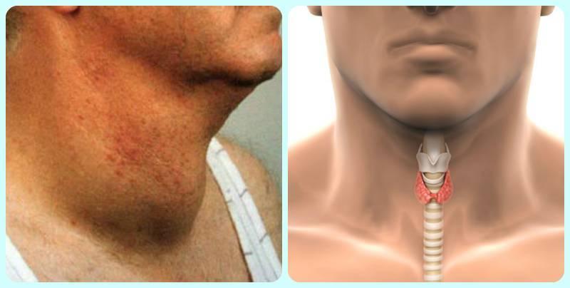 мужская щитовидная железа