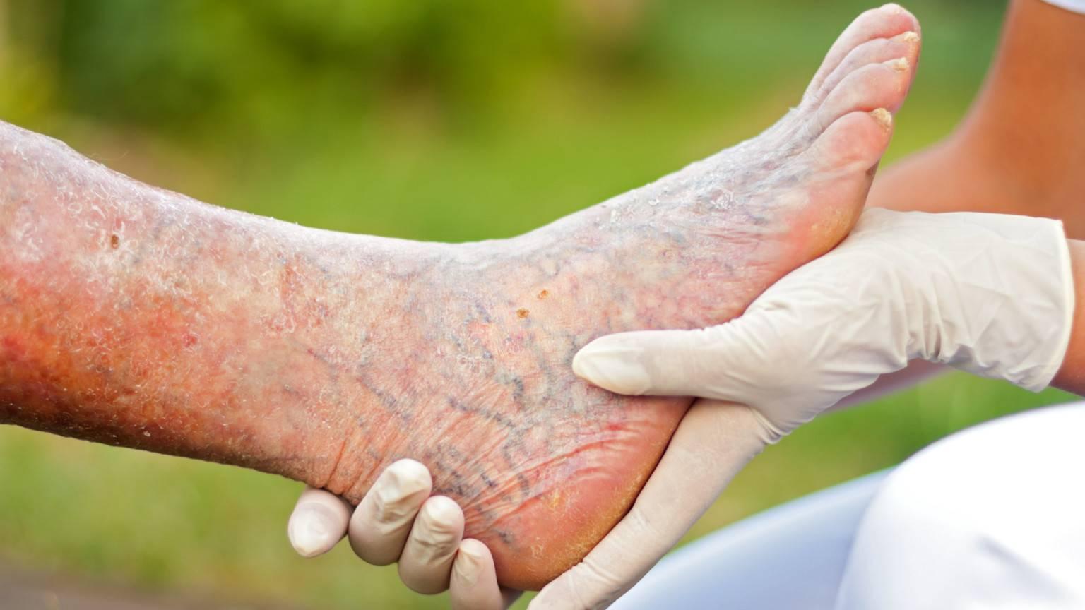Народные средства при варикозном дерматите