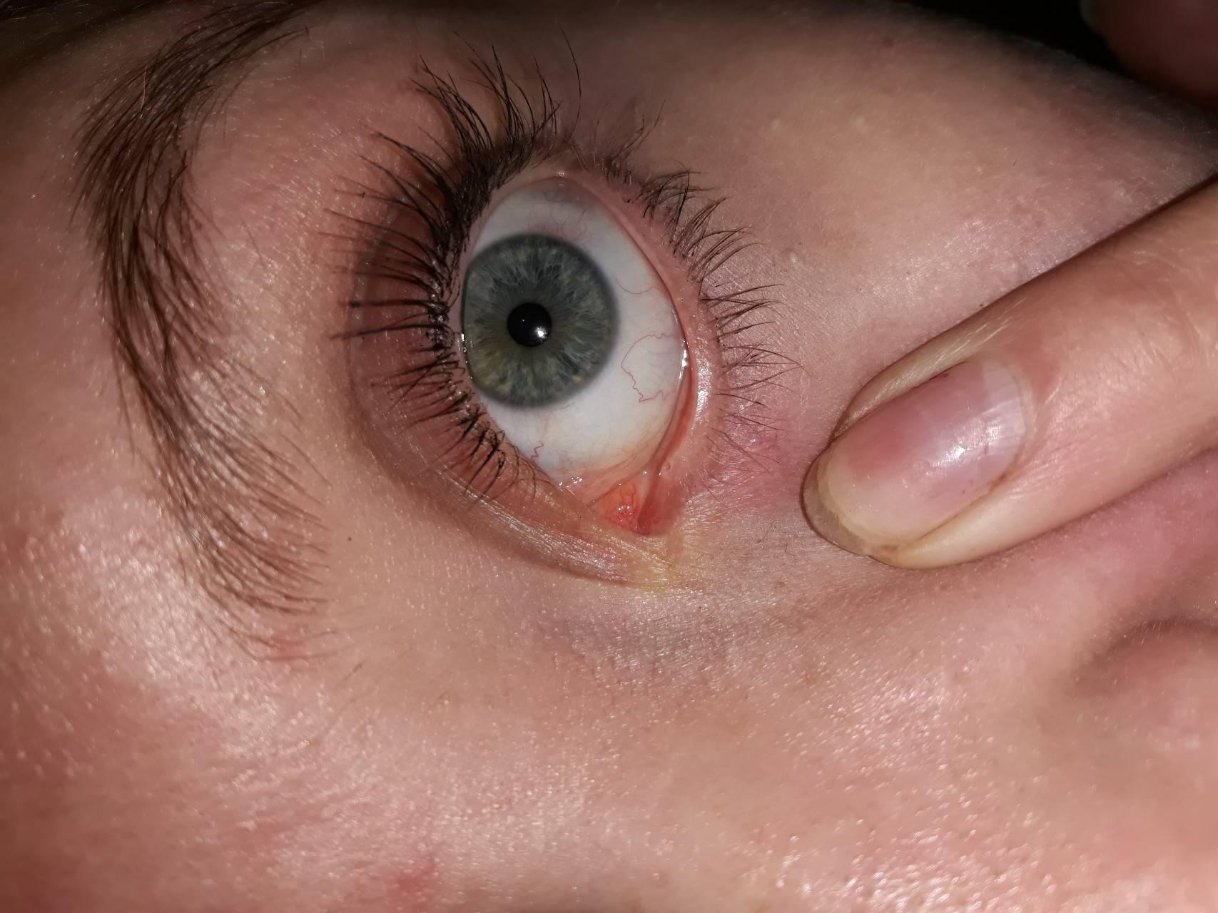 Расплывается в глазах: самые частые причины и возможные осложнения