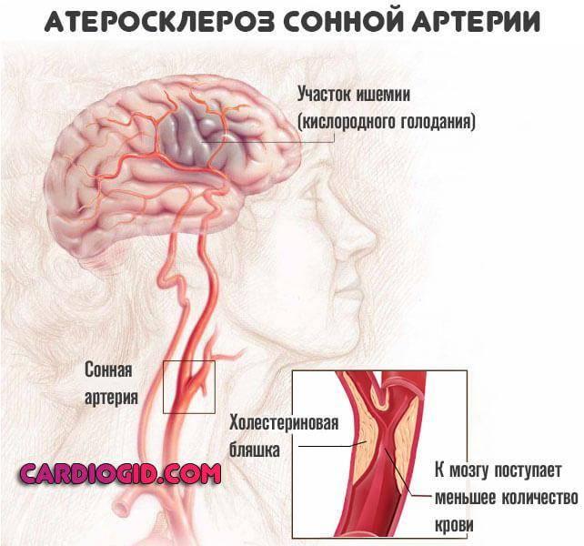 Список лучших препаратов для лечения атеросклероза сосудов головного мозга: правила применения и противопоказания