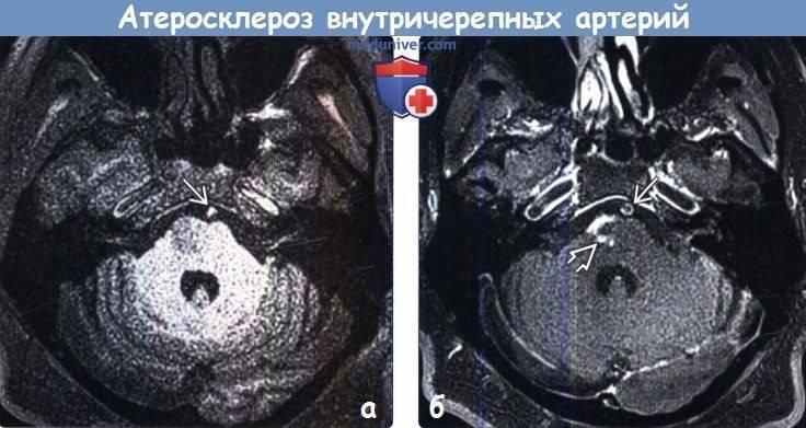 Церебральный атеросклероз сосудов головного мозга – лечение
