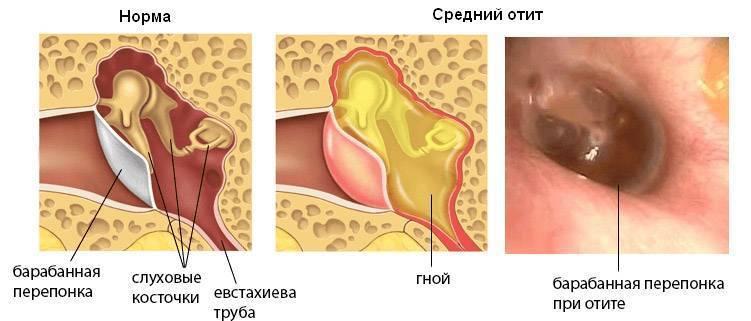 гриппозный отит