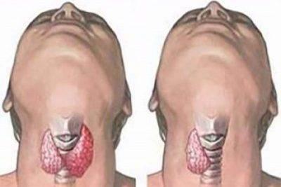 Удаление узлов щитовидной железы: показания, ход операции и её виды, реабилитация
