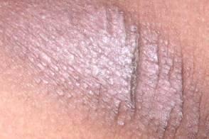 Классификация дерматозов и способы лечения