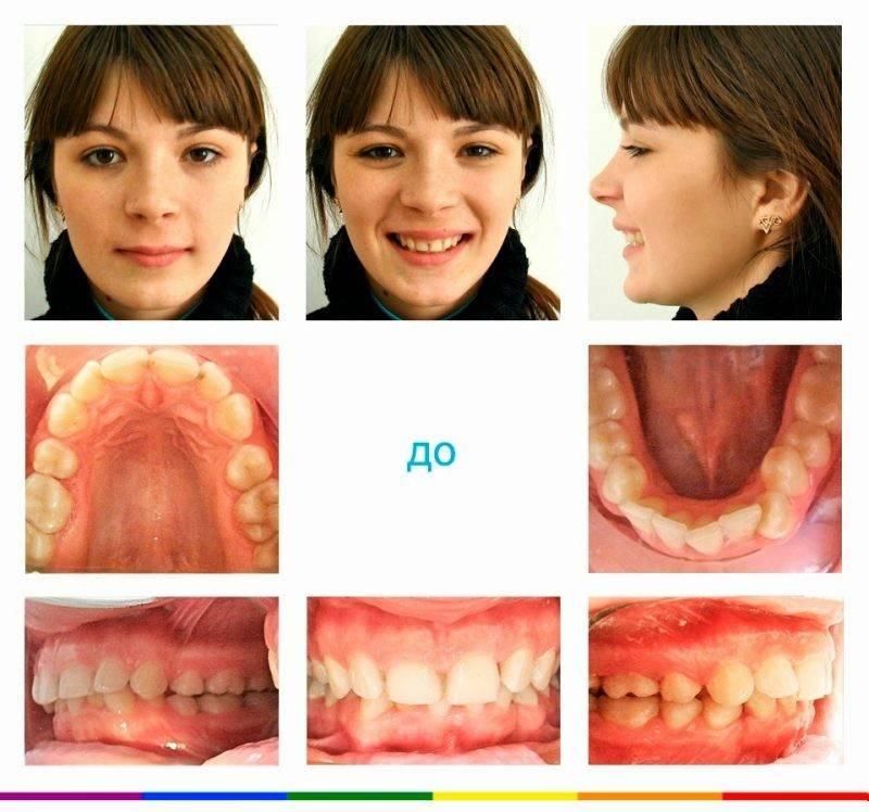 Нижняя челюсть вперёд: неправильный прикус и его исправление