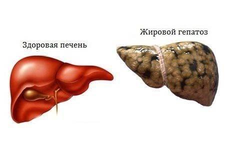 Эхопризнаки жирового гепатоза печени на узи брюшной полости