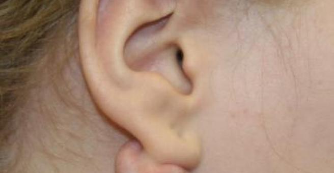 воспаление сальной железы за ухом