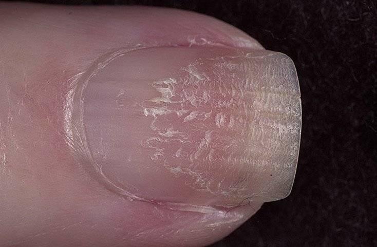 Как выявить и вылечить псориаз ногтей разными методами