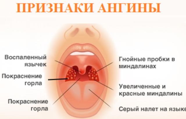 Белые точки в горле на гландах: что это значит?
