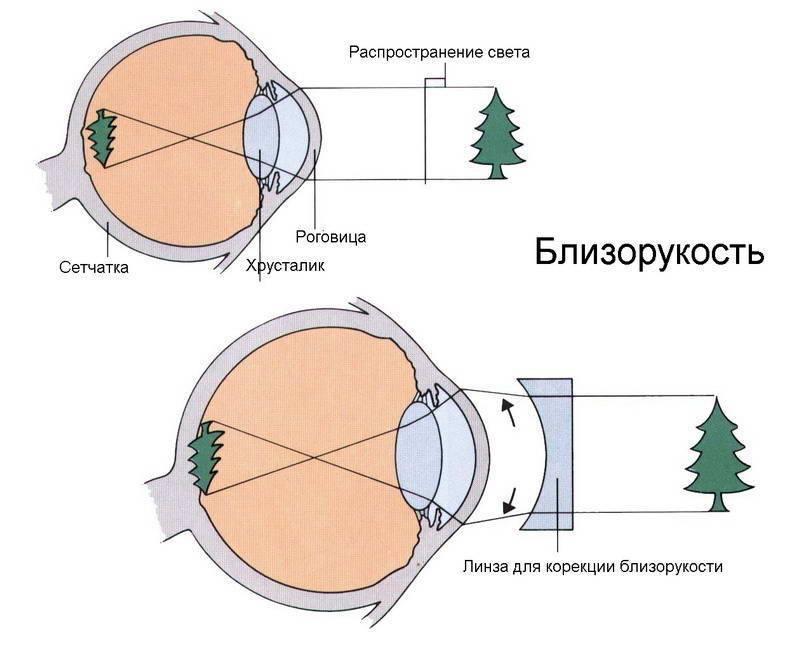 линзы для близоруких
