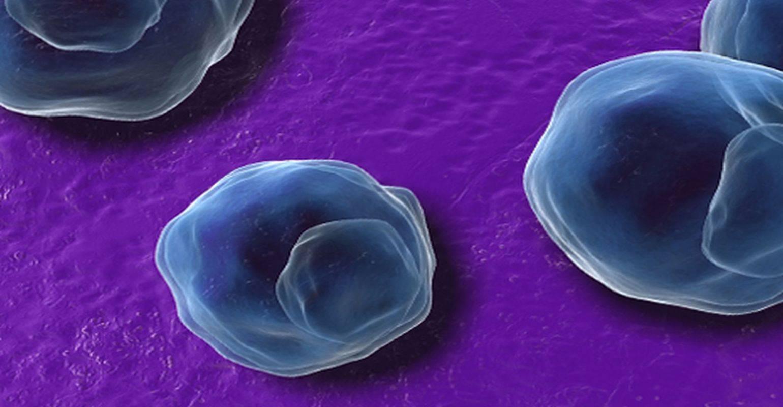 Особенности пневмонии вызванной хламидиями