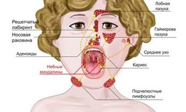 лечение аденоидита у детей комаровский