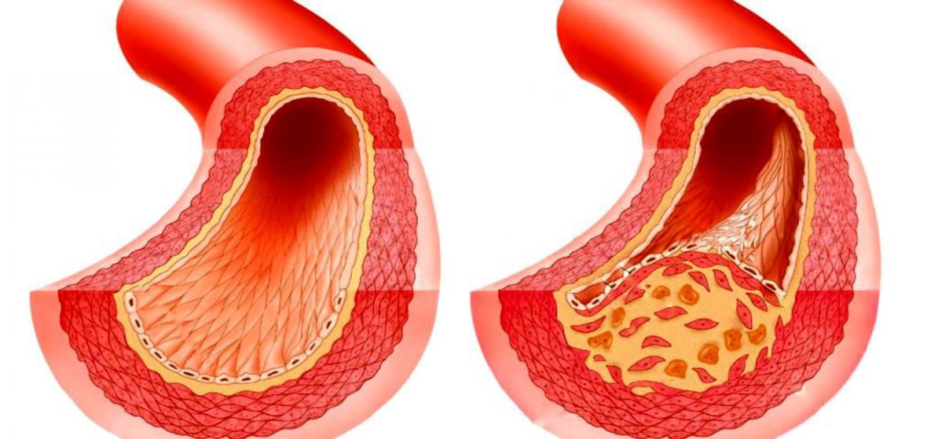 атеросклероза у мужчин