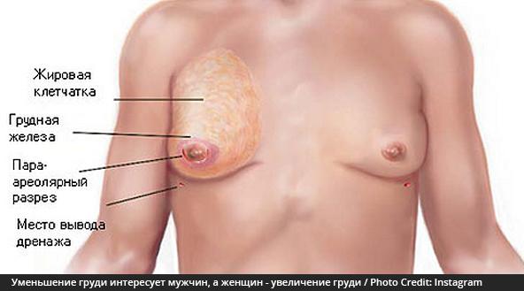 Почему может болеть правая сторона груди у женщин
