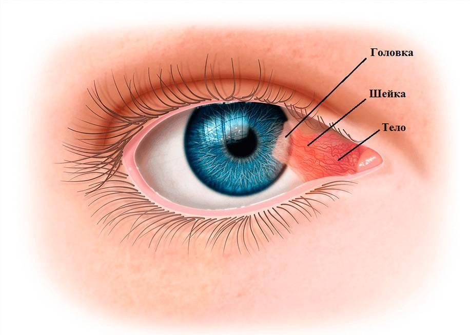 на белке глаза прозрачный нарост