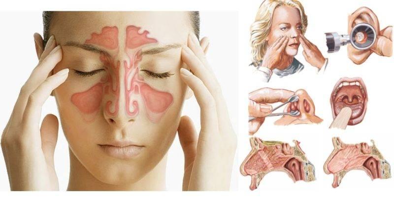 Симптомы и лечение сухого насморка (ринита)
