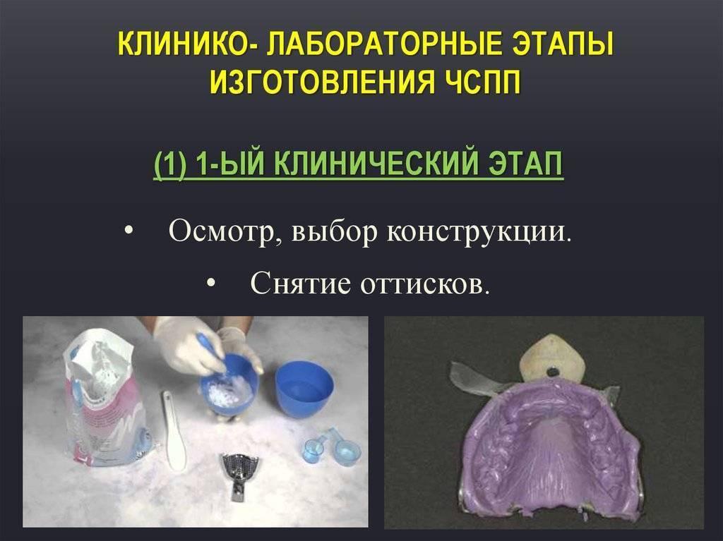 клинико лабораторные этапы изготовления бюгельного протеза