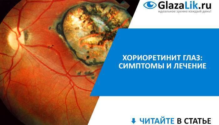 В чем опасность хориоретинита глаза, можно ли его вылечить и как?