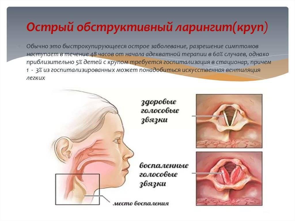 Хронический ларингит