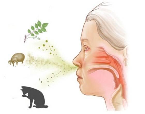 Аллергический ринит круглогодичной формы