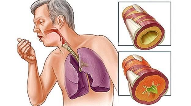 Кашель с мокротой без температуры у взрослого лечение насморк