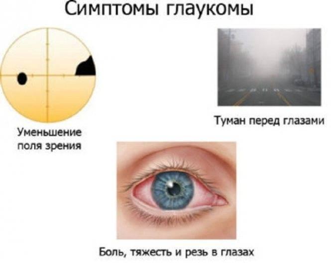 Спорт при глаукоме