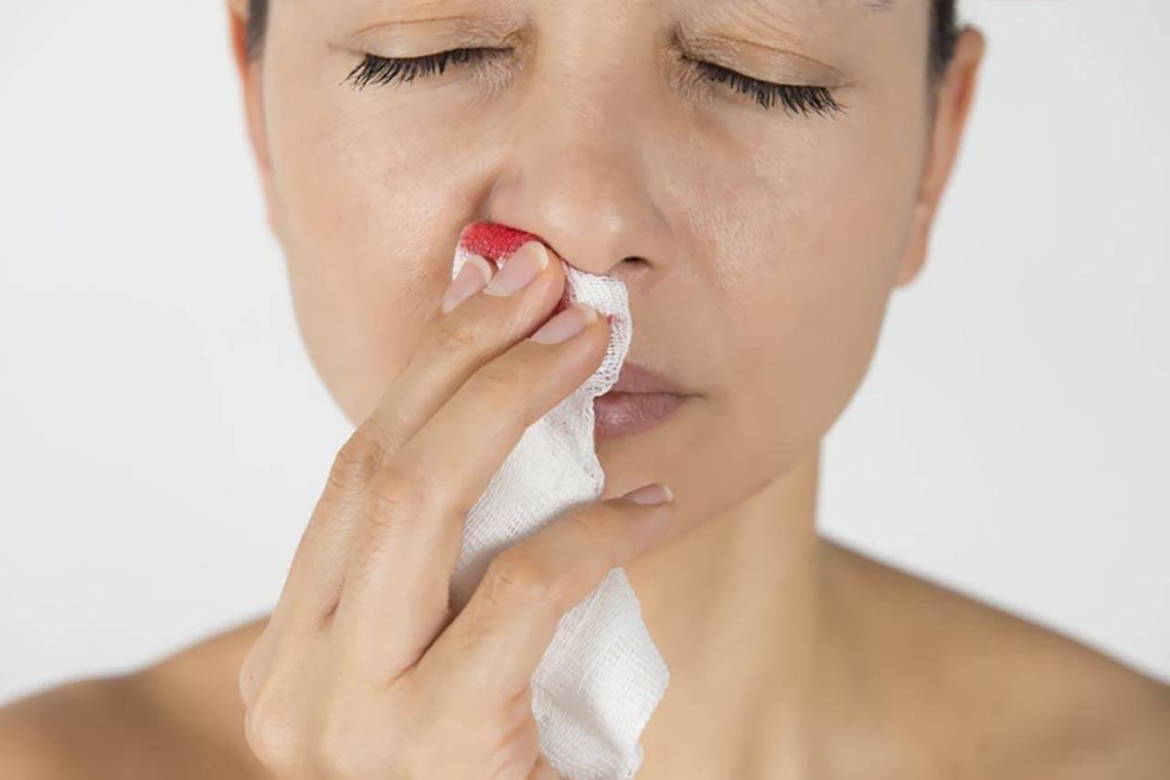 почему у беременных течет кровь из носа