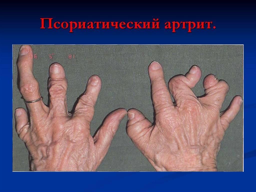 Артропатический псориаз: симптомы, диагностика и лечение
