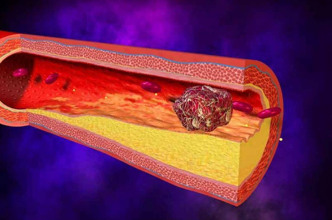 атеросклероз бляшки сонной артерии