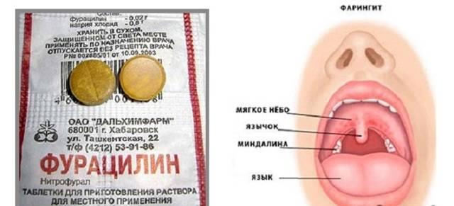 Как лечить фарингит при беременности: влияние острого и хронического фарингита на плод