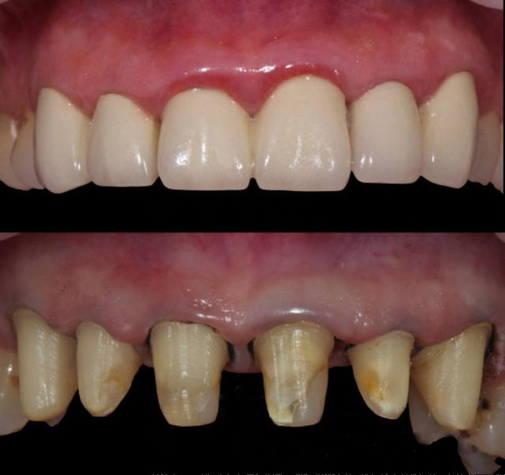 Использование коронок из диоксида циркония в современной стоматологии