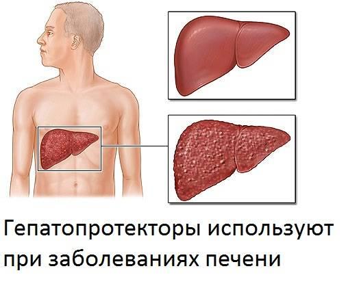 Повышение температуры при заболеваниях печени