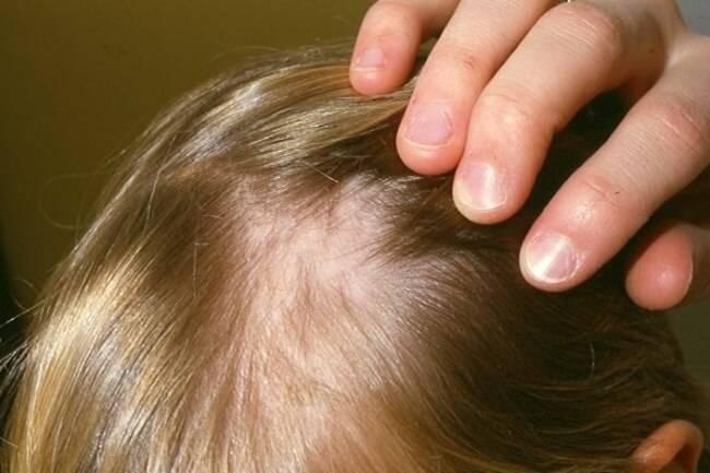 Псориаз и выпадение волос
