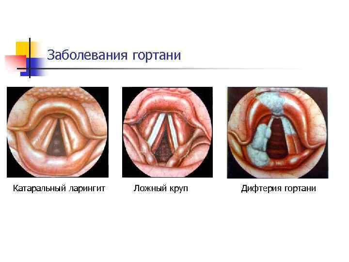 болезни гортани симптомы