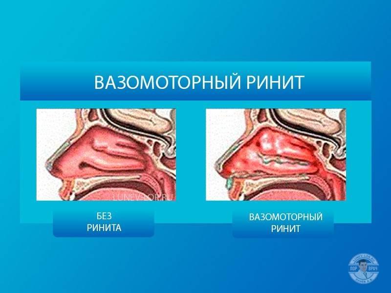 Вазомоторный ринит – симптомы, лечение, операция, причины у детей