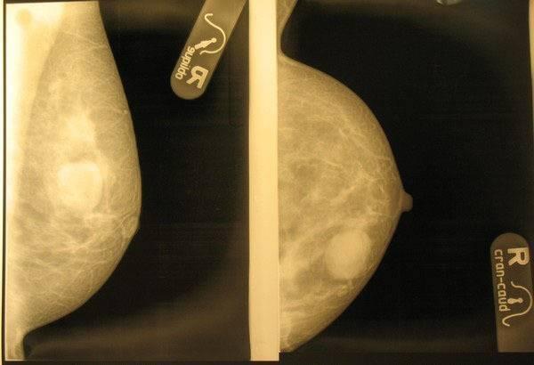 Что будет если не лечить фиброаденому молочной железы