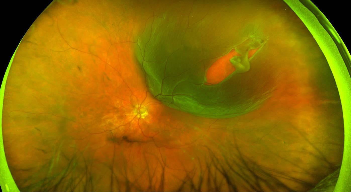 Разрыв сетчатки глаза - причины, симптомы, лечение, операция