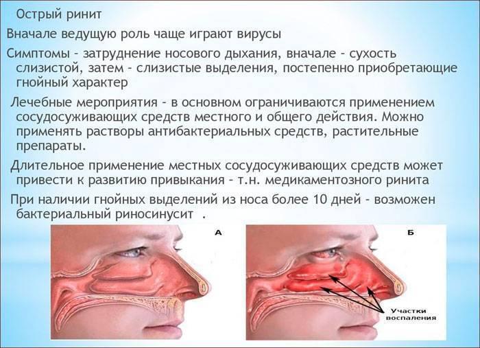 Симптомы и лечение заднего ринита у взрослых