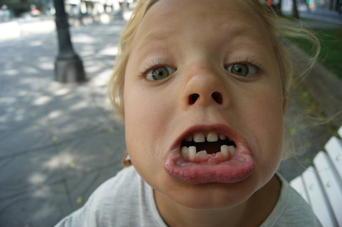 Коренной зуб растет криво т.к. челюсть узкая