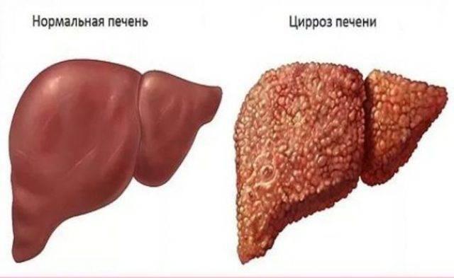 К какому врачу обращаться при заболевании печени