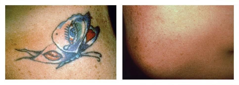 Тату и псориаз – можно ли делать татуировку