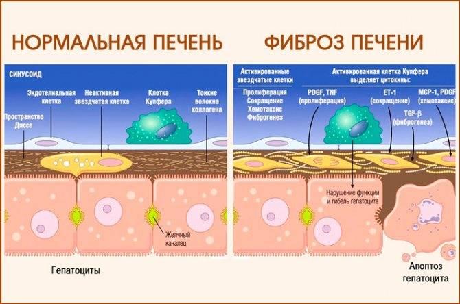 как лечить фиброз печени 2 степени
