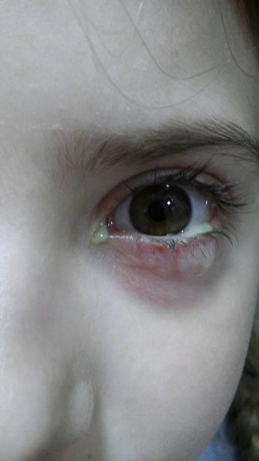 выделения из глаза у грудничка